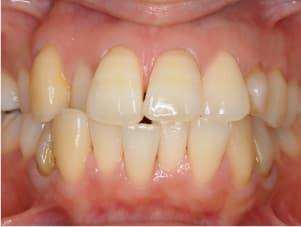 埋伏歯(歯が生えてこない)