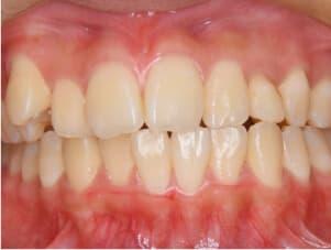 先天性欠損歯(歯がない)